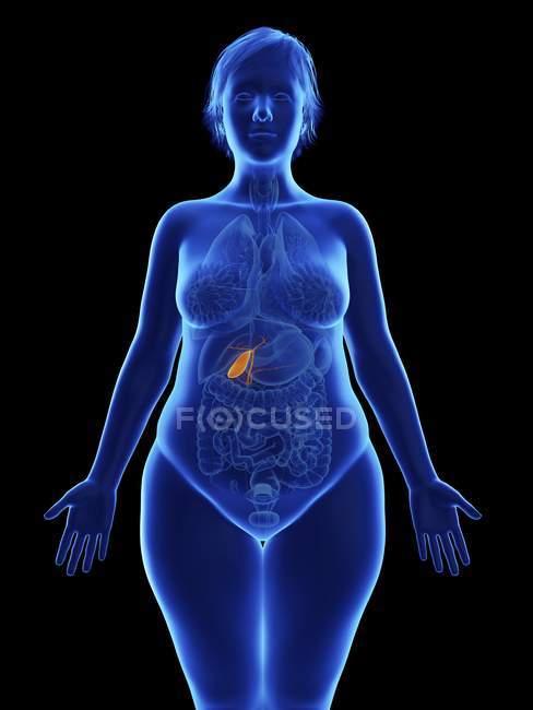 Ilustración frontal de silueta azul de mujer obesa con vesícula biliar resaltada sobre fondo negro . - foto de stock