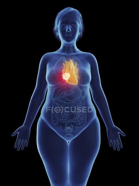 Иллюстрация раковой опухоли в женском сердце . — стоковое фото