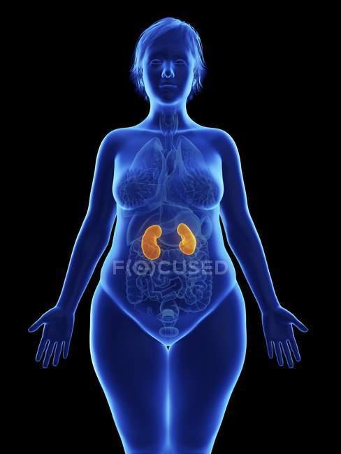 Ilustración frontal de silueta azul de mujer obesa con riñones resaltados sobre fondo negro . - foto de stock