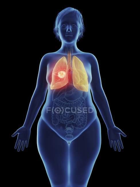 Illustration de tumeur cancéreuse dans le poumon féminin . — Photo de stock