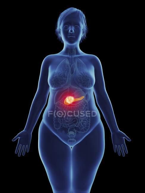 Иллюстрация раковой опухоли в женских поджелудочной железы. — стоковое фото