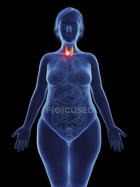 Иллюстрация раковой опухоли в женских щитовидной железы. — стоковое фото