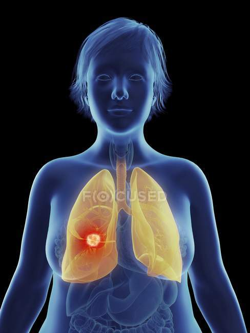 Illustration of cancerous tumour in female lung. — Stock Photo