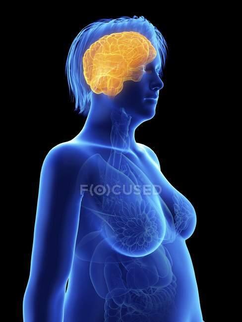Illustrazione su nero di silhouette di donna obesa con cervello evidenziato . — Foto stock