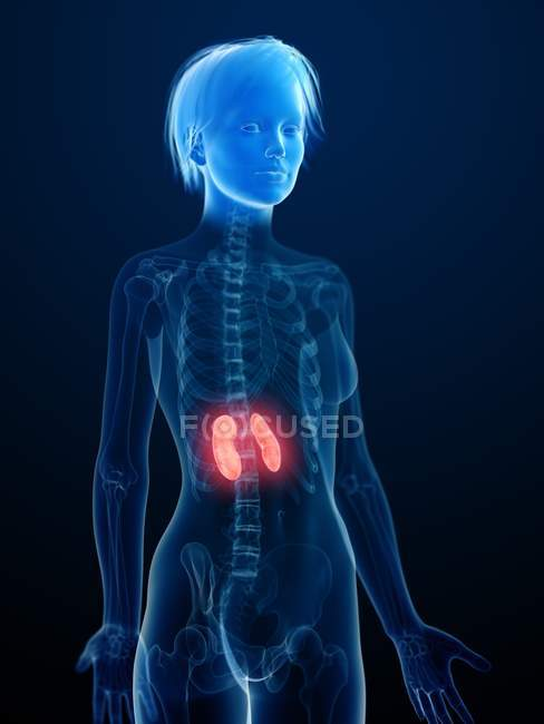 Medical illustration of inflamed kidneys in female silhouette. — Stock Photo