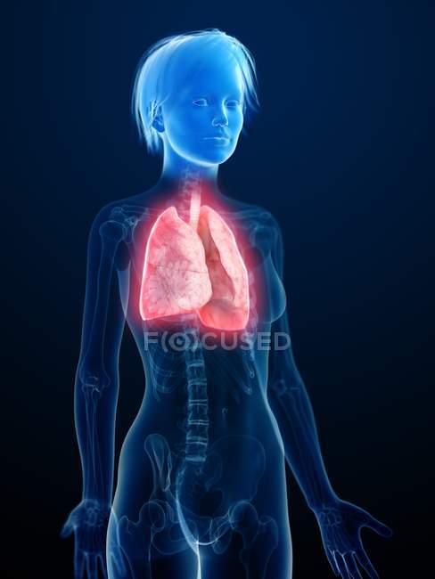Ilustración de la silueta humana con pulmones inflamados . - foto de stock