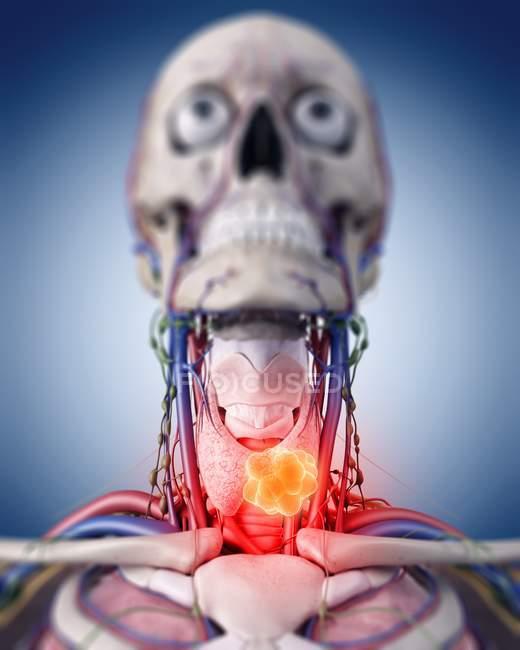 Иллюстрация опухоли щитовидной железы в реалистичные скелет. — стоковое фото