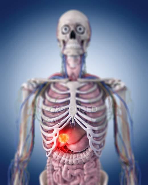 Ilustración del tumor hepático en el cuerpo esquelético humano . - foto de stock