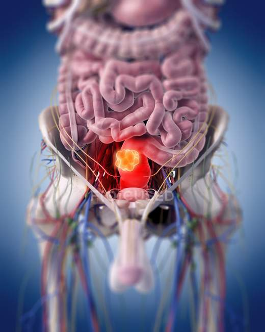 Medical illustration of rectal tumour in human body. — Stock Photo