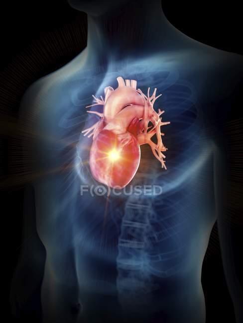Ілюстрація людини силует хворобливі серцем. — стокове фото