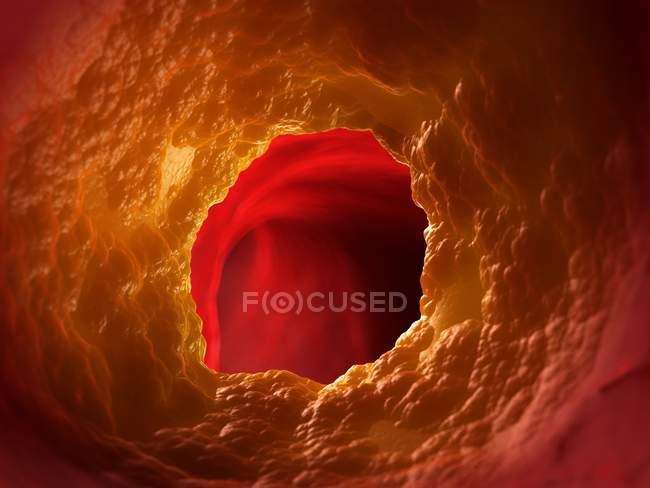 Illustration médicale du trouble de l'artère bouchée. — Photo de stock