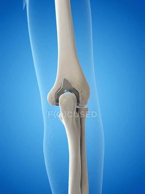 Ilustração de prótese de substituição do cotovelo em fundo azul. — Fotografia de Stock