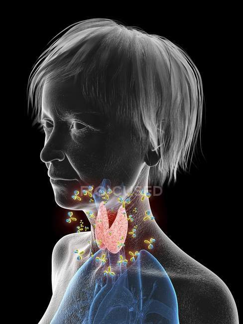 Рисунке старшие женщина силуэт показаны щитовидной железы, нападению антител. — стоковое фото