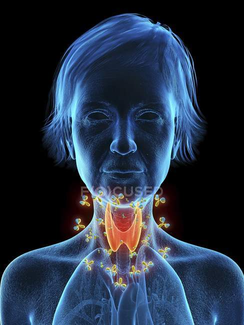 Ilustración de silueta de mujer mayor mostrando glándula tiroides atacada por anticuerpos . - foto de stock