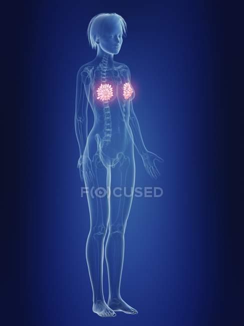 Ilustración de silueta femenina con glándulas mamarias dolorosas . - foto de stock