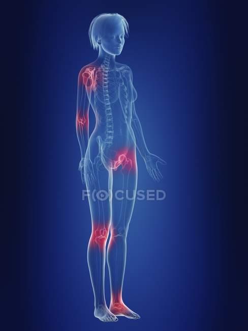 Ilustración de silueta femenina con articulaciones dolorosas . - foto de stock