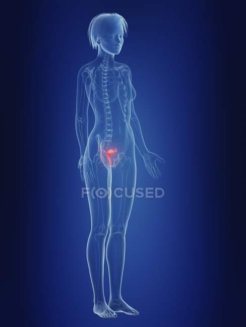 Illustrazione dell'utero infiammato nella silhouette del corpo femminile . — Foto stock