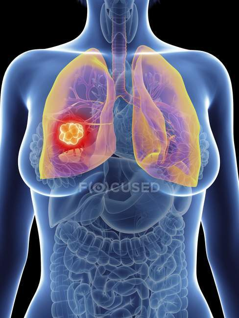 Illustration of female silhouette with highlighted lung cancer. — Stock Photo