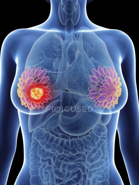 Иллюстрация женского силуэта с выделенным раком молочных желез . — стоковое фото