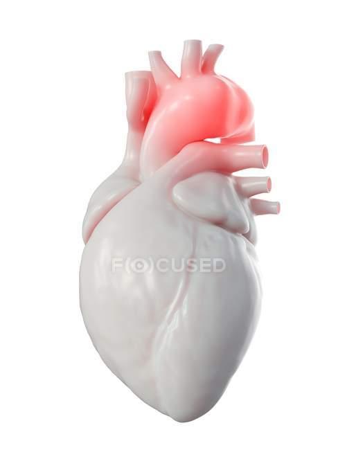 Ilustración del aneurisma aórtico en el corazón humano . - foto de stock