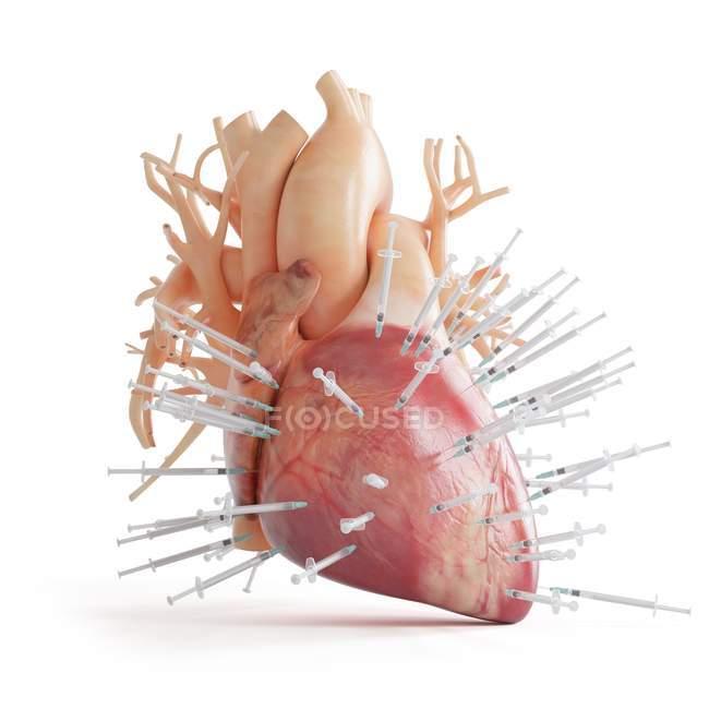 Ilustración conceptual del corazón humano lleno de jeringas . - foto de stock