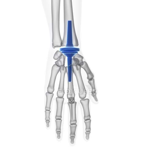 Ilustración del implante de reemplazo de muñeca sobre fondo blanco . - foto de stock
