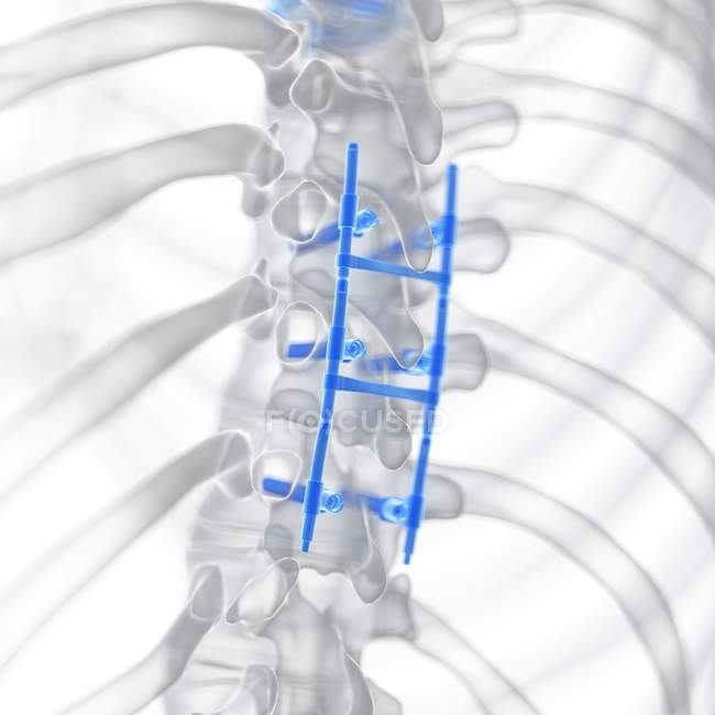 Illustration of spinal fusion in human skeleton. — Stock Photo