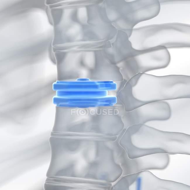 Ilustración de prótesis de reemplazo de disco azul . - foto de stock