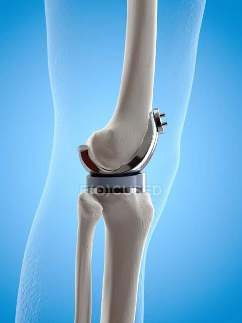 Иллюстрация имплантата для замены колена на синем фоне . — стоковое фото