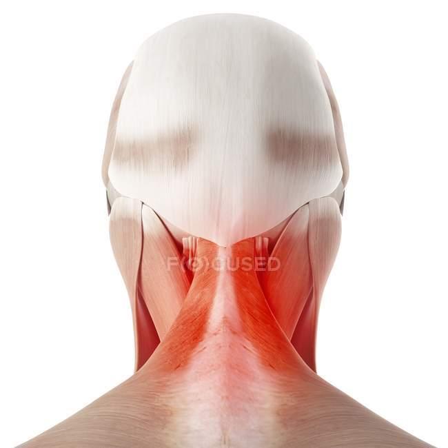 Иллюстрация болезненной шеи человека на белом фоне . — стоковое фото