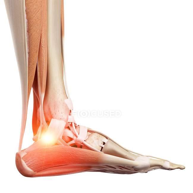 Ilustración del esqueleto humano tobillo doloroso . - foto de stock