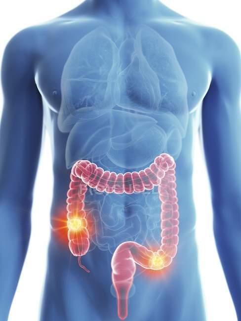 Ilustración de silueta azul transparente del cuerpo masculino con cáncer de colon coloreado . - foto de stock