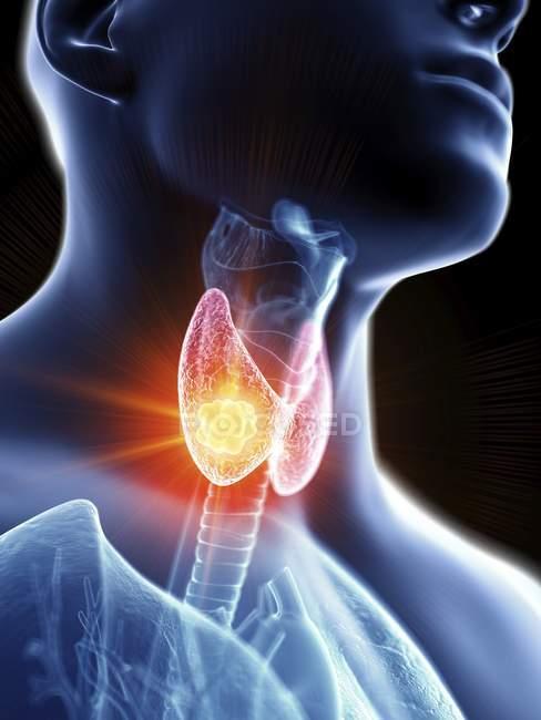 Ilustración de cerca del cáncer de glándula tiroides en la silueta corporal masculina . - foto de stock