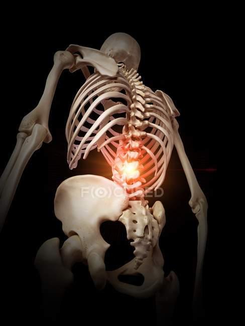 Ilustración del esqueleto humano columna vertebral dolorosa . - foto de stock