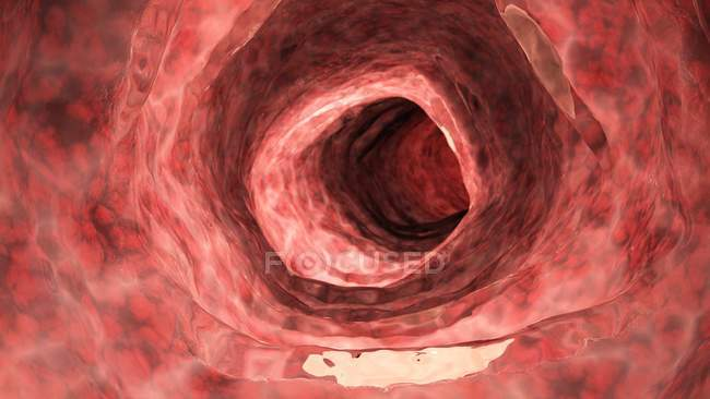 Digital illustration of human inflamed colon. — Stock Photo