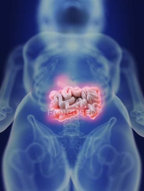 Ilustración de la silueta humana con el intestino inflamado . - foto de stock