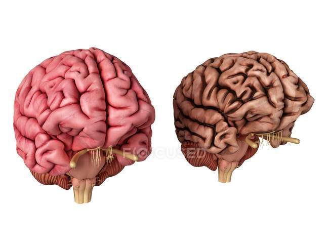 3d rendered illustration of healthy and unhealthy brain on white background. — Stock Photo