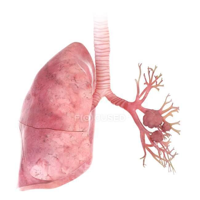 Illustration en 3D du cancer du poumon sur fond blanc . — Photo de stock