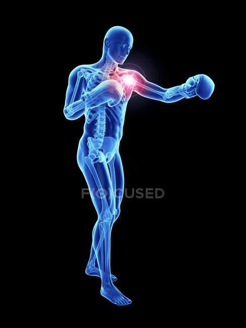 3d renderizado ilustración de boxeador masculino hombro doloroso . - foto de stock