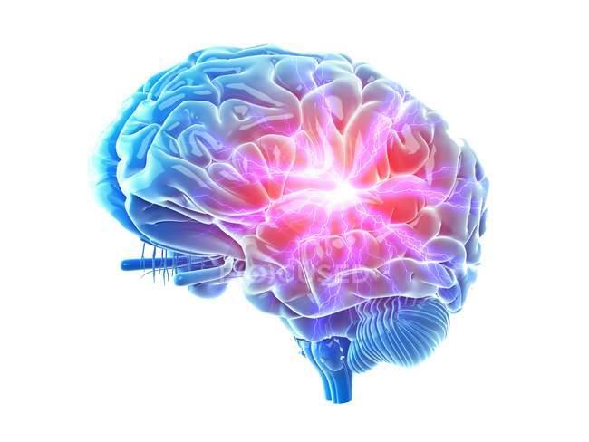 3d renderizado ilustración de color doloroso cerebro . - foto de stock