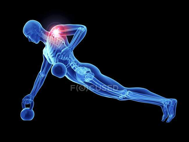 3d resa illustrazione di atleta maschio con kettlebells con doloroso articolazione della spalla . — Foto stock