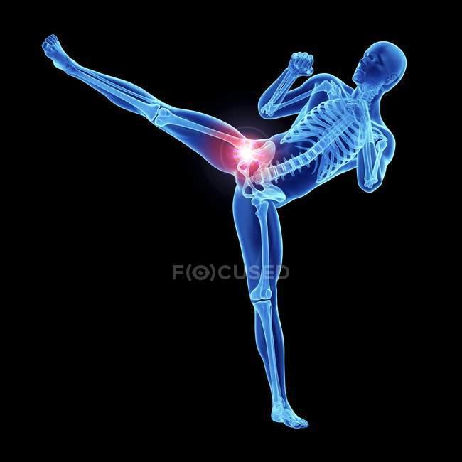 3d renderizado ilustración de patadas masculinas atleta dolorosa articulación de la cadera . - foto de stock