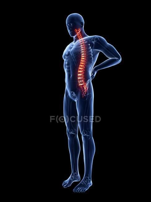 3d reso illustrazione di silhouette blu dell'uomo con mal di schiena . — Foto stock