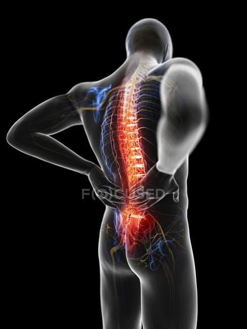 3d renderizado ilustración de silueta gris del hombre con dolor de espalda . - foto de stock