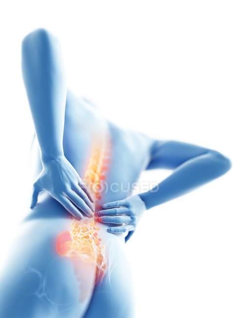 3D надані ілюстрація синій силует людина з болю в спині. — стокове фото