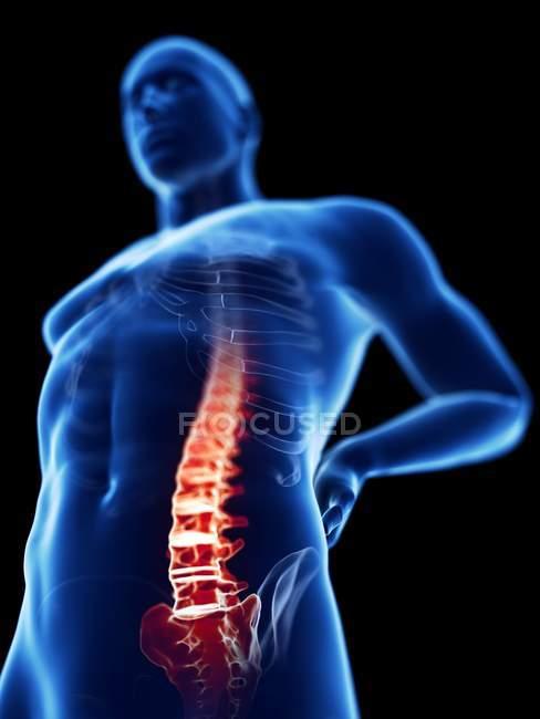 Vista de ángulo bajo 3d renderizado ilustración de silueta azul del hombre con dolor de espalda . - foto de stock