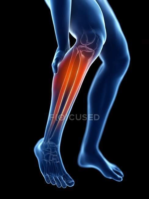 3d renderizado ilustración de silueta azul de las piernas masculinas con becerro doloroso . - foto de stock