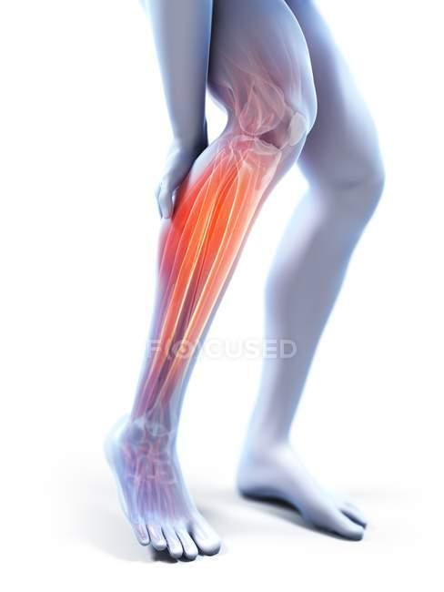 3d renderizado ilustración de silueta gris de las piernas masculinas con becerro doloroso . - foto de stock