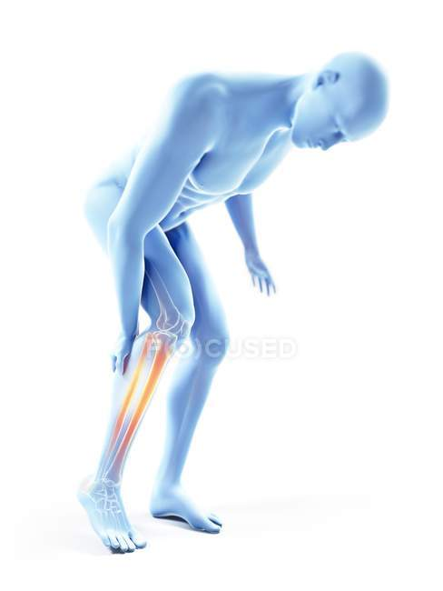 3d rendered illustration of blue silhouette of man with painful calf on white background. — стоковое фото