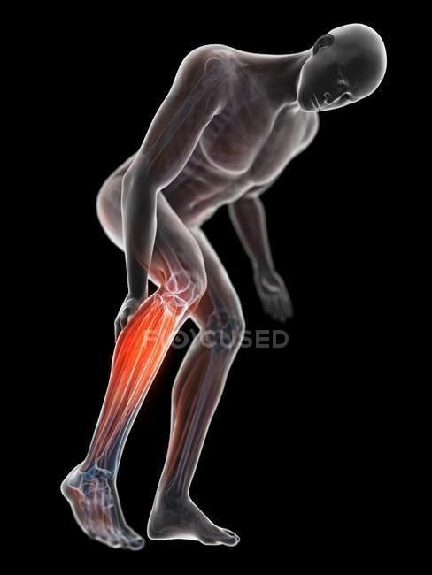 3D надані ілюстрація сірий силует людина з болючою теля. — стокове фото